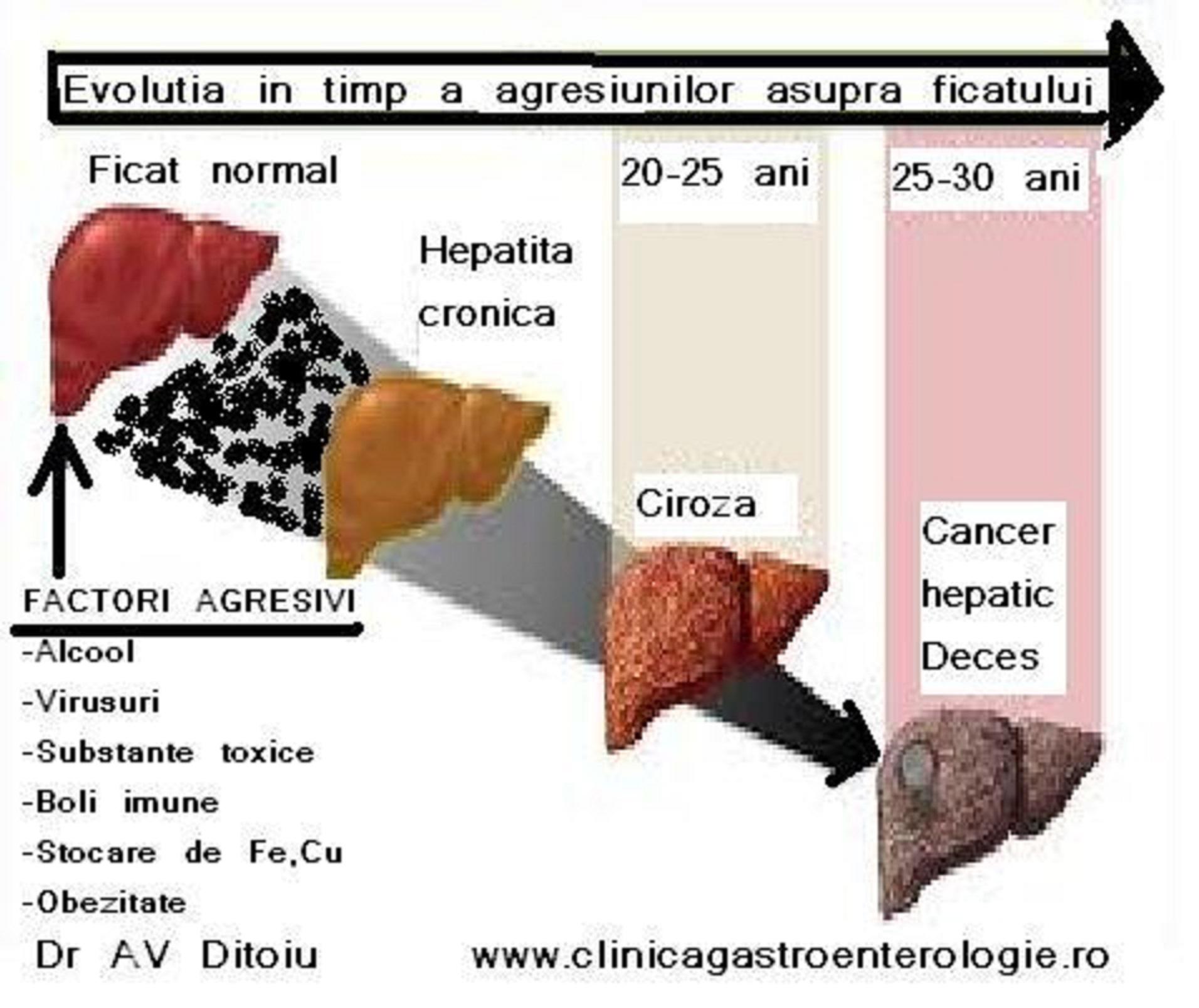 Hepatita C cu evolutie galopanta