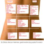 Principalele cauze de dureri abdominale