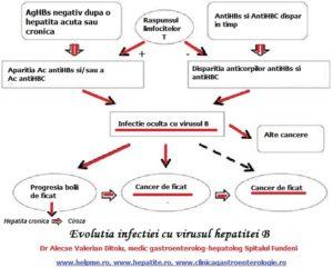 Hepatita cu virus B se poate complica cu cancer de ficat