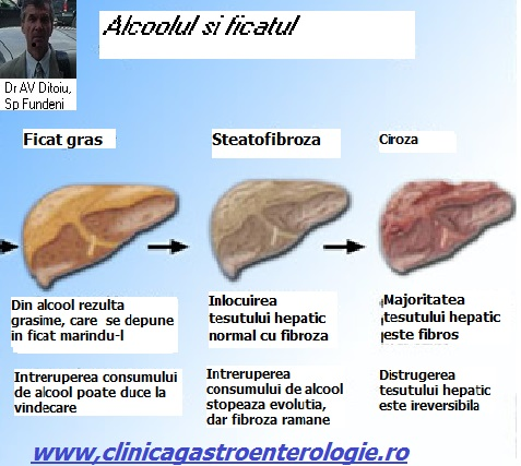 Regim alimentar in steatoza hepatica