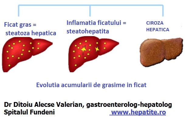 Cum poate evolua steatoza hepatica