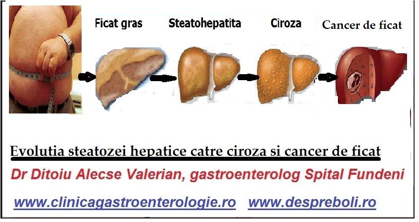 steatoza hepatica gradul 3 regim alimentar)