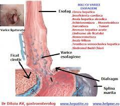 Bolile esofagului – simptome, explorari, forum