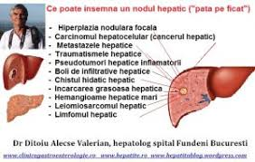 Adenomul hepatic,diagnostic, complicatii, tratament