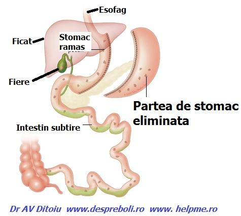 Cum sa te strici singur la stomac – complicatiile chirurgiei bariatrice – gastric sleeve