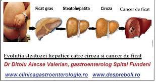 Steatoza hepatica (ficatul gras) – grade histologice