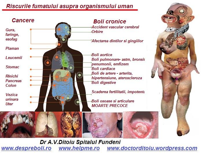Despre consecintele fumatului
