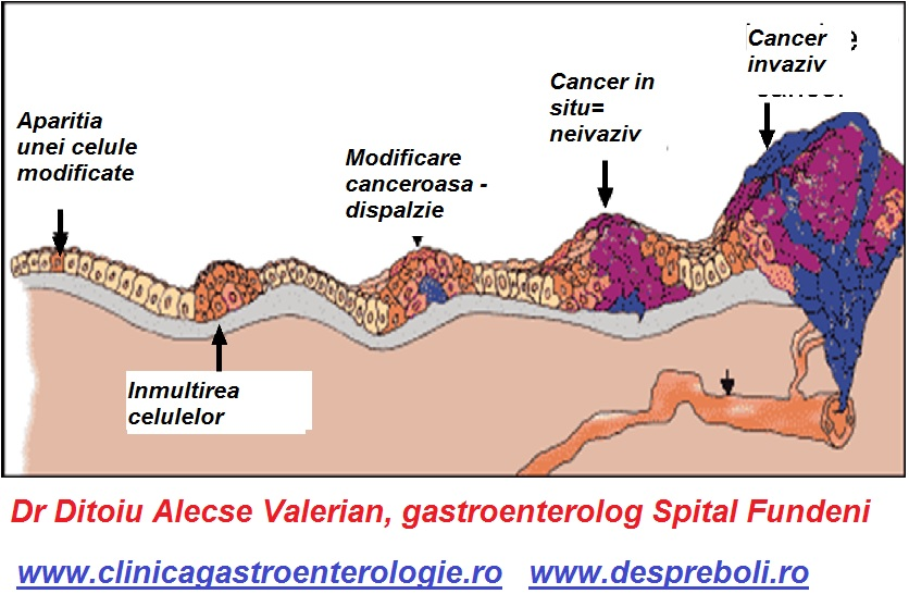 Ce analize trebuie facute pentru diagnosticul de cancer